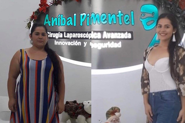 PRIMER AÑO POST-BYPASS GASTRICO