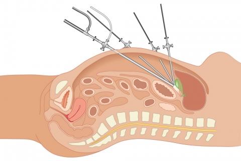¿Qué es la laparoscopia?